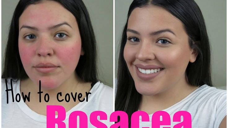 Updated Rosacea Cover-Up Makeup Tutorial | DomGBeauty