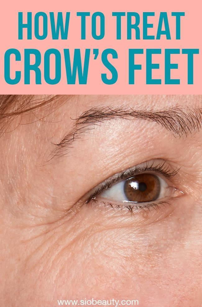 bbd7f028e1b0ffe36a2ca2165ac26c33 - How To Get Rid Of Eye Wrinkles And Crow S Feet