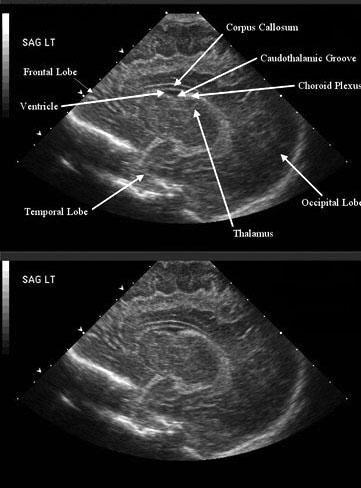 Periventricular Hemorrhage Intraventricular Background Pathophysiology Epidemiology