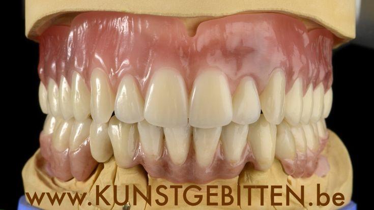 #denturist Buyle
