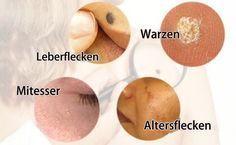 Natürliche Heilmittel gegen  Warzen, Leberflecken, Mitesser & Altersflecken