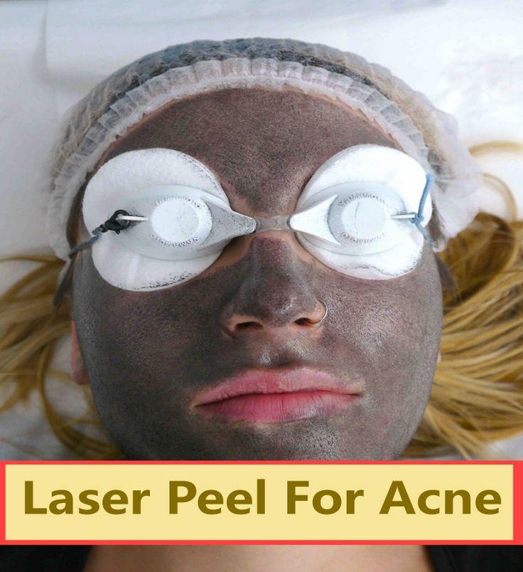 Laser Peel for Acne