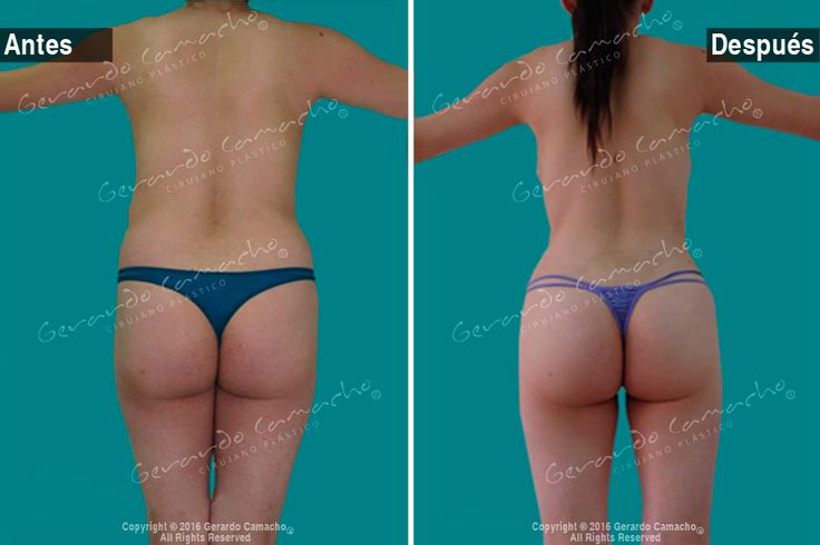 Mommy Makeover  son los procedimientos: Lipolisis  Ultrasónica  VASER-Abdominoplastía con elevación de senos  con Prótesis  Dr. Gerardo Camacho Cirujano Plástico Bogotá Colombia