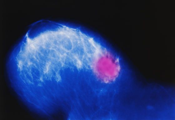 image #00bkck15 Color-enhanced mammogram of the right breast of a 73-year-old woman showing carcinoma. #photo #image #carcinome #cancer #mammographie #sein