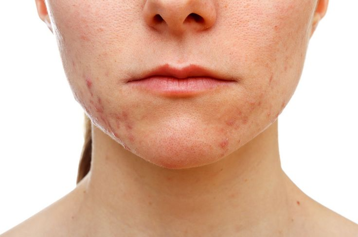 IPL or a PhotoFacial can be great for getting rid of that residual color after acne.  http://lewisvillelaser.com/site/services/ipl-skin-rejuvenation/