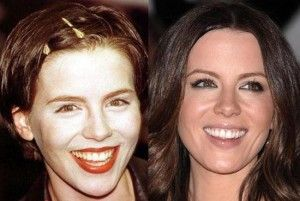 Kate Beckinsale Plastic Surgery Before and After