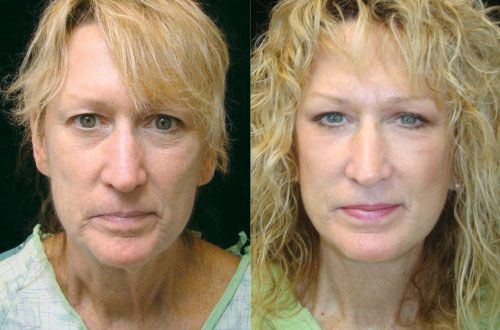 Casa De Oro Mount Helix Eyelid Surgery and non-surgical procedures to rejuvenate your eyes. Juvederm and Restylane options for Blepharoplasty. #juvederm #blepharoplasty #eyelidsurgery #restylane #eyelift
