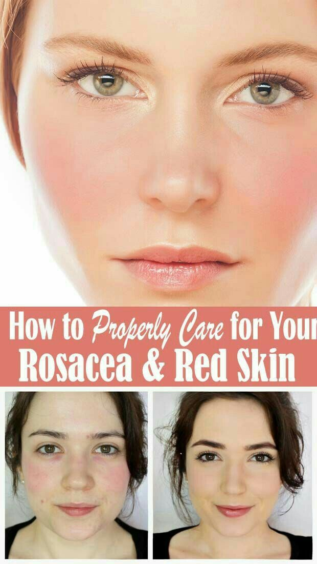 How To Properly Care For Your Rosacea Red Skin Generally Speaking Each Individual Will Have A Somewhat Unique Set Of In 2020 Rosacea Skin Care Clear Skin Tips Skin