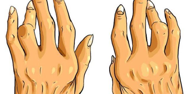 Combata artrite, esporão e ácido úrico com o remédio mais poderoso e econômico do mercado | Cura pela Natureza