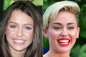 Miley cyrus - Top 10 Celebrity Cosmetic Dental Surgery Before and After Photos