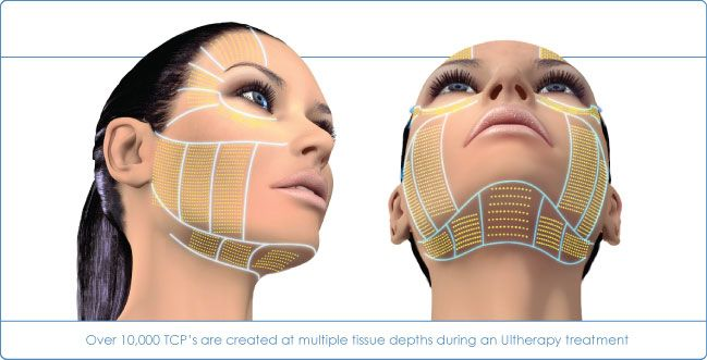 Ultherapy - Face Overview