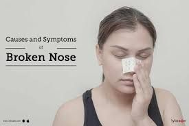 If you have concerns in hearing, are suffering from ear infections, have any birth defect related to the outer, inner, allergies or face issues with smell or obstruction in the nasal cavity, you can seek the help of an otolaryngologist. Problems with the head and neck and correct various deformities using procedures such as cosmetic and reconstructive surgery. Success treated in ENT specialist in Bangalore. https://www.lybrate.com/bangalore/ear-nose-throat-ent-specialist