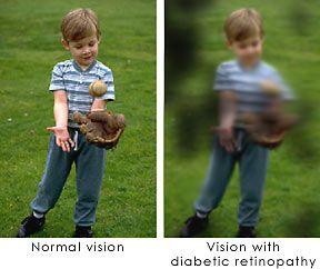 Vision in Diabetic Retinopathy Eye Disorder