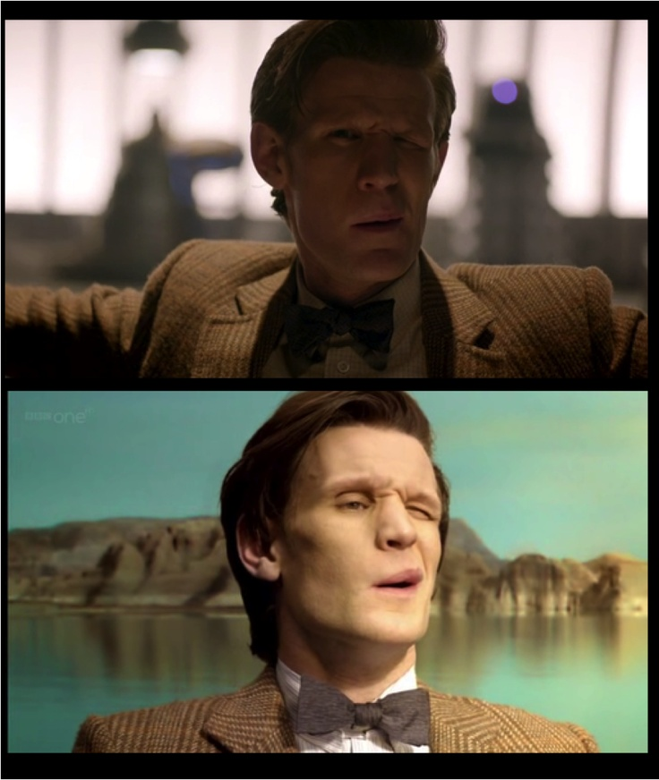 "The Doctor's ""Why am I not dead?"" face."