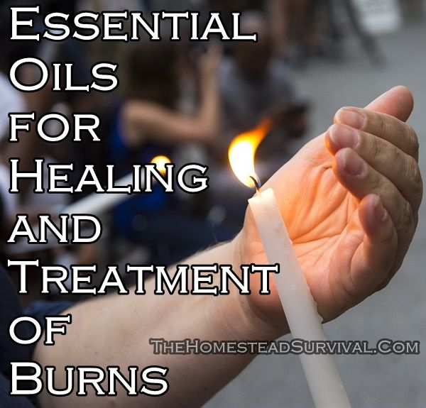 Essential Oils for Healing and Treatment of Burns Homesteading  - The Homestead Survival .Com