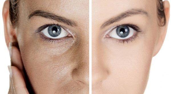 I pori dilatati, la pelle lucida e i comedoni sono tutti inestetismi che rendono la grana della pelle non compatta e la stesura dei prodotti di make