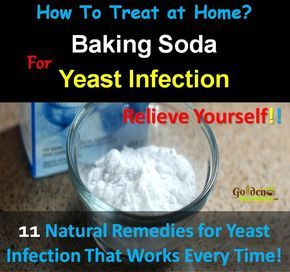 Baking Soda For Yeast Infection:  How To Use Baking Soda For Yeast Infection, How To Get Rid Of Yeast Infection, Home Remedies for Yeast Infection Treatment