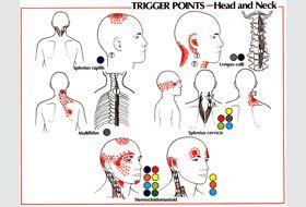 Headaches | GadiBody.com | Neuromuscular Therapy - Strain Counterstrain Pain Relief - Los Angeles, Santa Monica CA