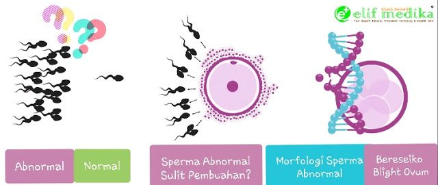 15++ Hasil tes sperma oligozoospermia ideas