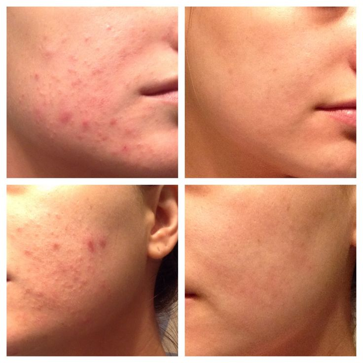 Doxycycline Acne What To Know About Doxycycline