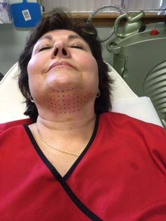 Kybella Now at Advanced Laser & Skin Center - http://advancedlaserandskincenter.com/wp-content/uploads/2016/01/After-Kybella-Procedure.jpg - http://advancedlaserandskincenter.com/latest-news/february-2016-specials-at-advanced-laser-skin-center-2/