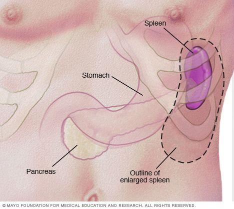 Image of enlarged spleen