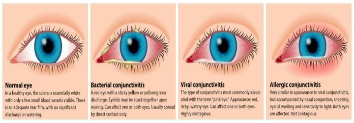 Top 9 Effective Home Remedies To Treat Pink Eye Naturally With