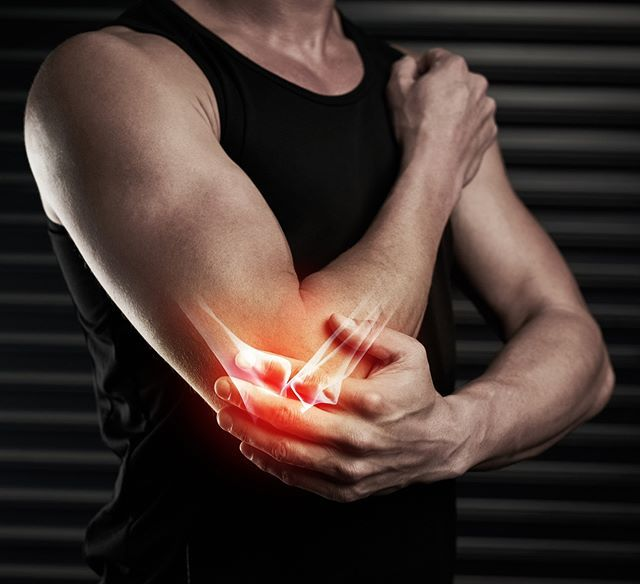 Tendonitis Such As Tennis Elbow Is Inflammation Of A Tendon The Symptoms Include Pain And Swelling Common Sites Inclu Essential Oil For Tendonitis Tendinitis