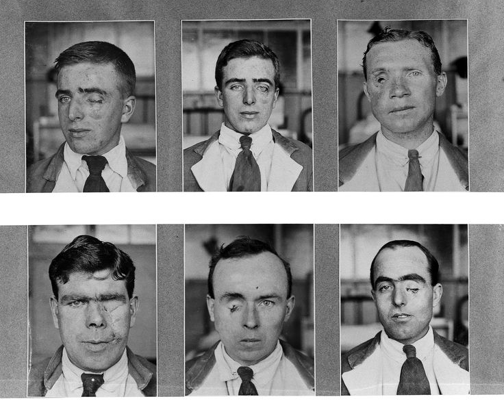 File:Plastic surgery, 1917-1919 Wellcome L0030136.jpg Check out what I found on the internet