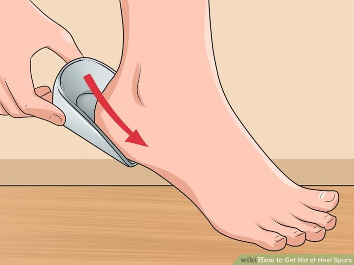 How to get rid of heel spurs: orthotic inserts