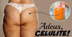 """A celulite é um dos """"males"""" que mais incomodam as mulheres quando o assunto é a boa forma. Para se ver livre dos furinhos, é preciso contar, primeiramente, com uma boa genética, além de apostar em alimentação saudável e exercícios físicos regulares. No entanto, existem algumas receitinhas secretas que podem t"""