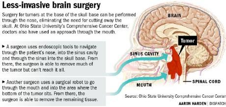 Doctors at Ohio State are using methods to remove #brain tumors through the nose and mouth in order to avoid large incisions and the cutting away of other bones and tissues.