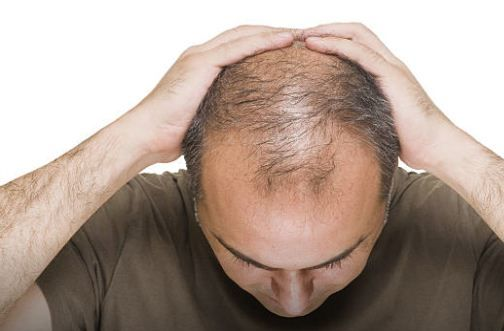 A successful hair grower is definitely necessary for those who have hair loss constraints. On average, women experience hair loss cases are caused by various factors, one of them stress and a lot of pressure from outside. Although men typically have bald hair problems.