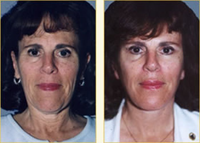 Face Toning Exercises: Stimulating And Exercising Facial Muscles For A Firmer Face Skin