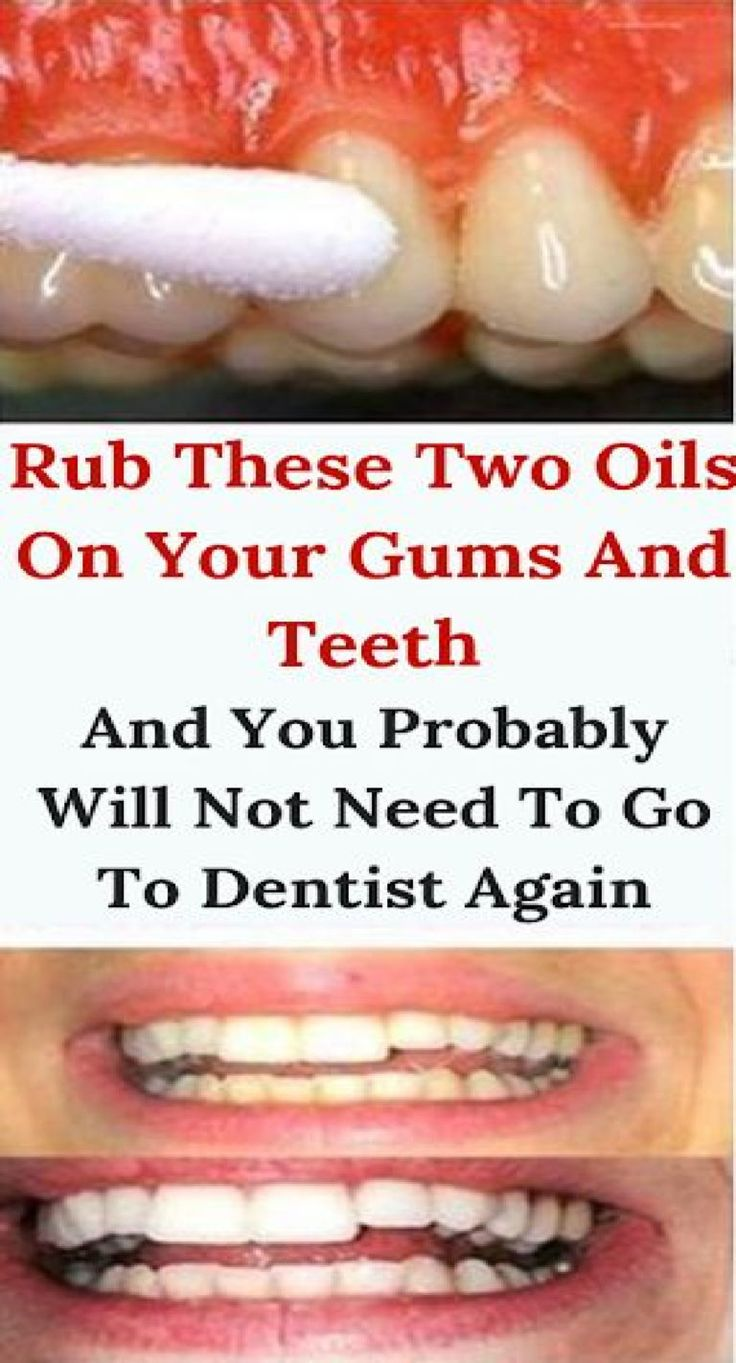 Rub These Two Oils On Your Gums And Teeth And You Probably