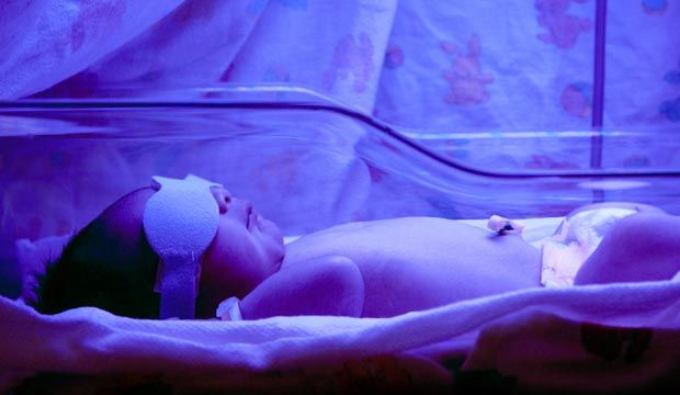 La jaunisse est fréquente chez les nouveau-nés et apparaît dès les premières 48 heures de vie pour se résorber en 3 semaines environ. La jaunisse (ictère) n'est pas une maladie et n'est nullement contagieuse.