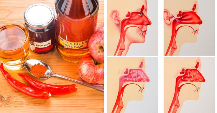 How to use Apple Cider Vinegar for Sinus Infection Sinuses are small cavities in the skull normally filled with air. Sinuses produce mucus, keeping nasal passage free from allergies and pollutants. Sinus infection, or sinusitis, is an inflammation of the tissues that line the cavities commonly caused by bacterial infections. Apple cider vinegar, or Apple …