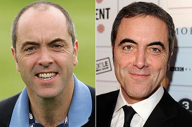"James Nesbitt  Fellow Irishman James also visited HRBR after his hair loss became an ""obsession"" which he felt would impact on his career. The Cold Feet actor underwent two hair transplants at the clinic and was so pleased with the results he even appeared in a video testimonial. ""Since then I have had two hair transplants and I am very pleased with the results."