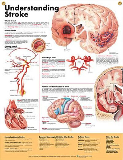 Understanding Stroke anatomy poster explains and illustrates stroke, including the two main types: ischemic and hemorrhagic.