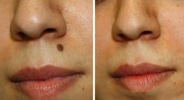 How to Get Rid Of Moles Naturally?
