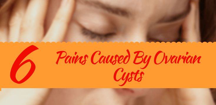 types of ovarian cyst caused pain back, pelvic, sex, bowel, abdominal