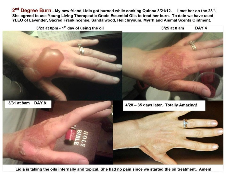 This is shows the remarkable healing properties of Young Living Oils. Www.youngliving.org/fortiermommy http://www.youngliving.org/signup/?signup=US&sponsorid1543960&enrollerid=1543960
