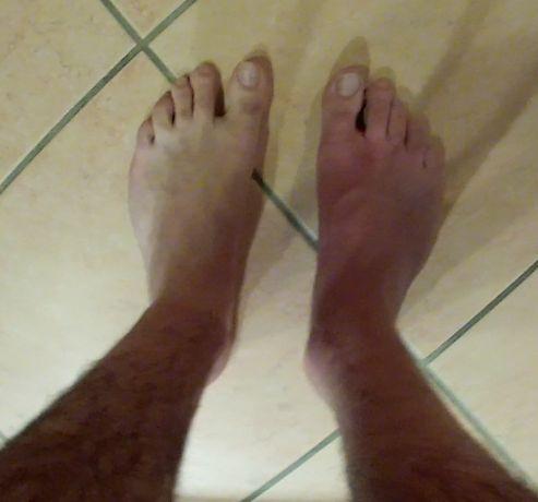 HELP ! Troubles de la circulation du sang dans le pied après fracture