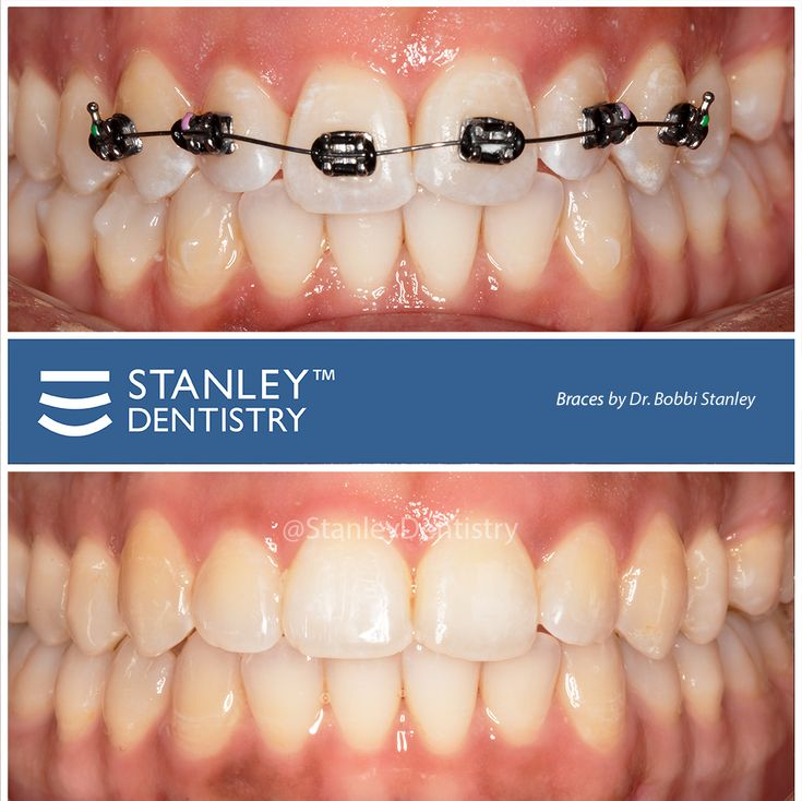 Fixing Crooked Teeth with Braces (With images