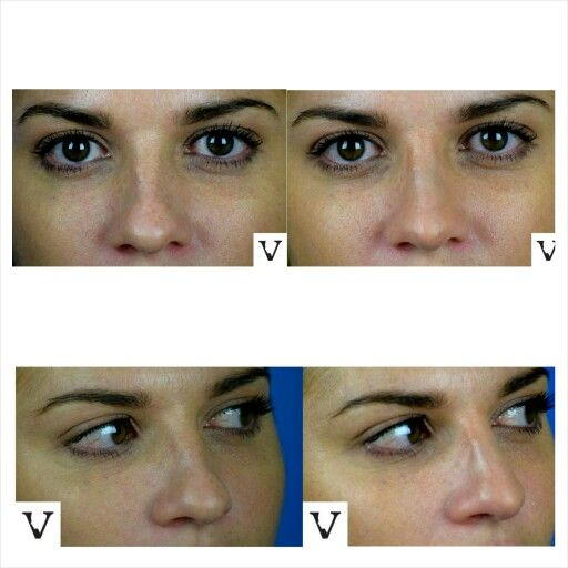 I'm going to let the pictures speak a thousand words instead of me  Non-surgical rhinoplasty is our specialty www.visagesculpture.com #boston #rhinoplasty #nosejob #alternative #injection #expert #newton #asymmetry #correction #reconstruction #hiv #lips #eyes #beauty #taste #youth #young #proportion #selfesteem #juvederm #belotero #merz #galderma #allergan #botox #sculptra #chin #augmentation #jaw #reduction #face #slimming #visagesculpture #mashabanar