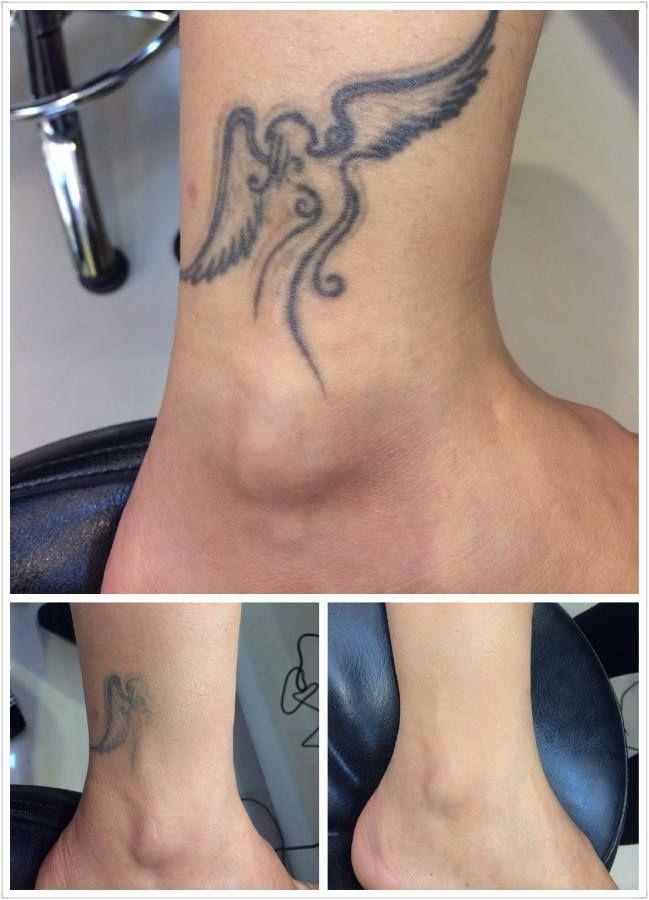 Airbrush makeup Tattoo coverage