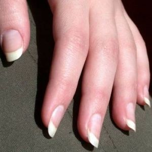 Witte nagels