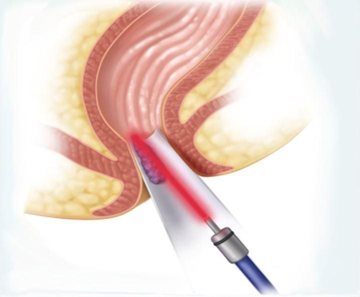 hemorrhoid laser surgery reviews