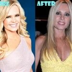 Tamra Barney Plastic Surgery