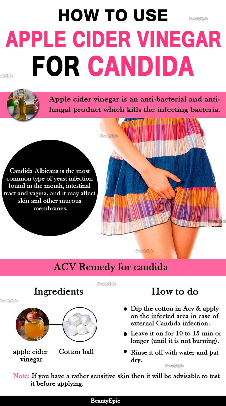 Does apple cider vinegar help yeast infections